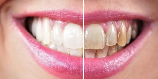 Przebarwienia na zębach – przyczyny ich powstawania