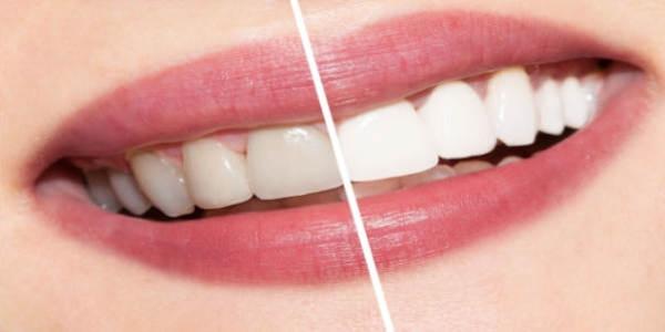 Jak szybko wybielić zęby Praktyczne metody i wskazówki