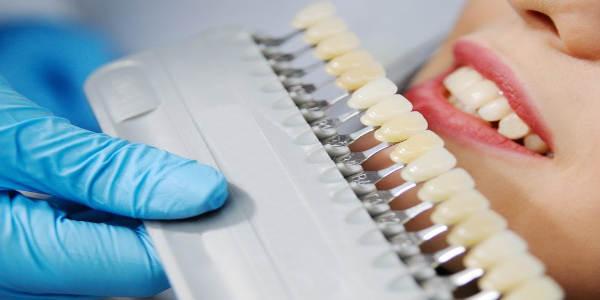Na czym polega wybielanie zębów i czy może powodować ból