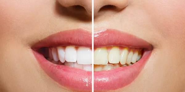 żółte zęby – skąd się biorą