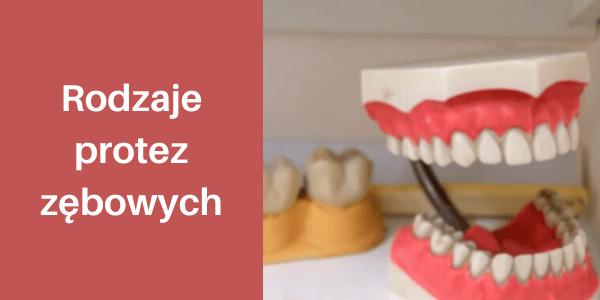 Rodzaje protez zębowych: jakie protezy stałe i ruchome wybrać i ile będzie to kosztować?